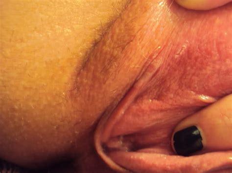 sores around the vagina jpg 800x600