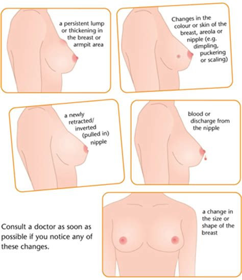 Breast screening breast cancer cancer research uk gif 368x427