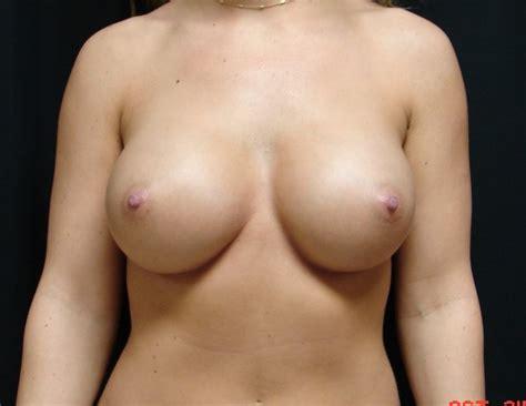 Breast augmentation virginia beach, va chesapeake breast jpg 674x521
