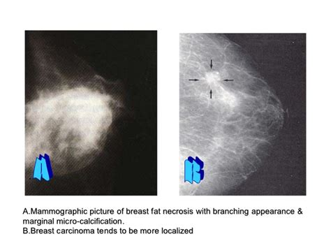 Cancer rate is low for breast lesions categorized as jpg 728x546